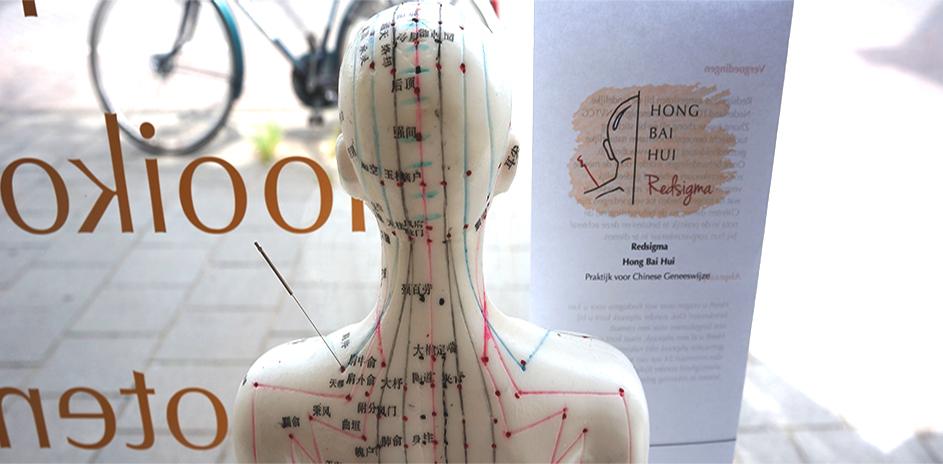 acupunctuur hooikoorts